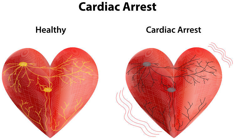 Graphic showing the difference between a healthy heart and one in cardiac arrest