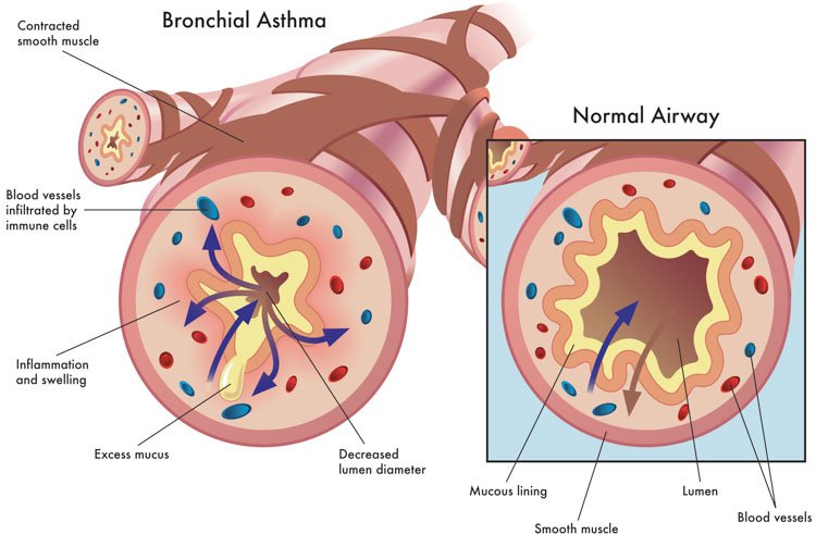 Comparison of normal and asthma affected airways